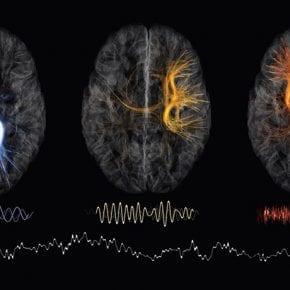 Нейробиологи считают, что забывчивость – это признак неординарного ума